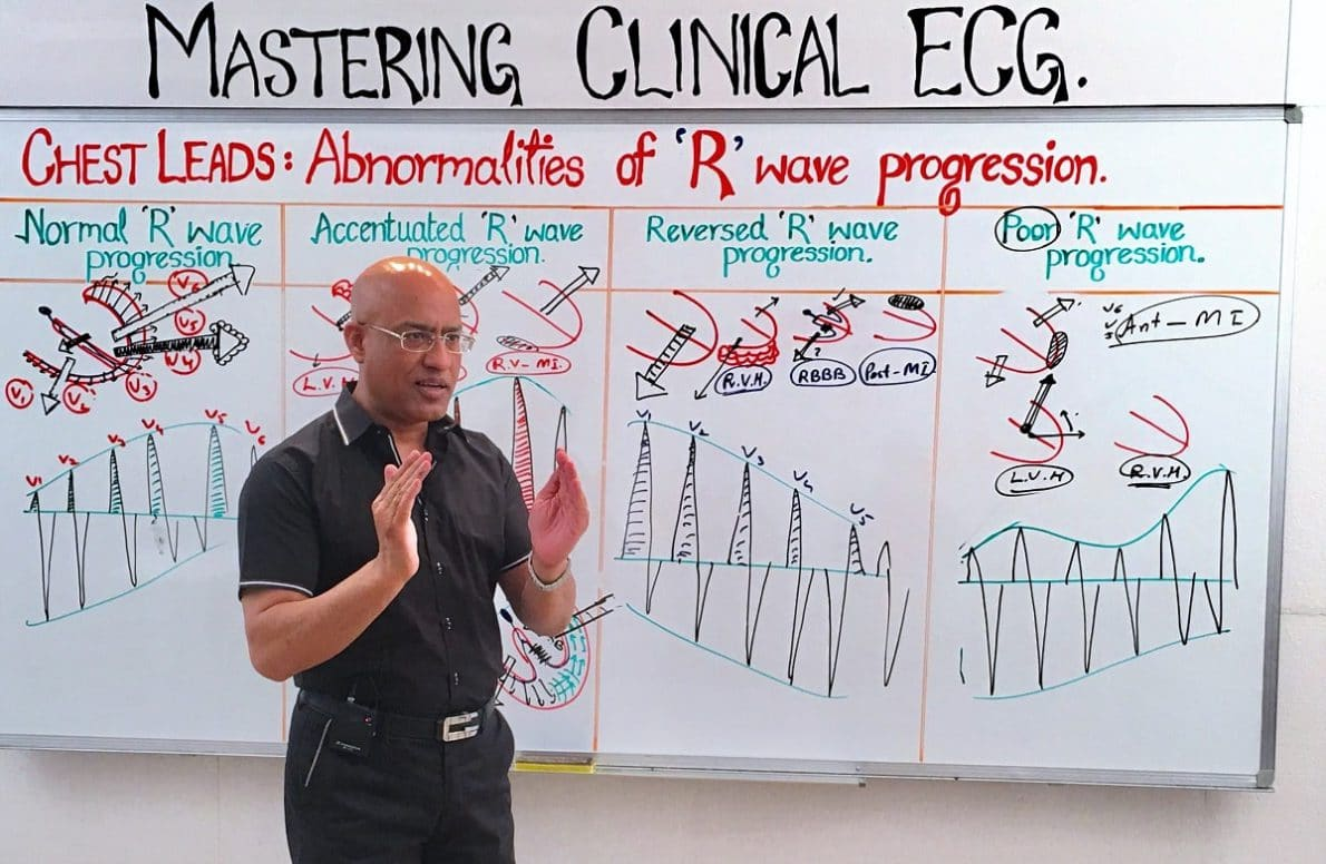 r wave progression dr najeeb lectures