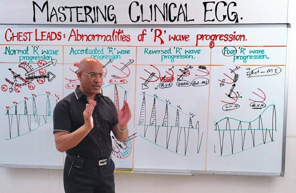 EKG Chest Leads - Dr. Najeeb Lectures