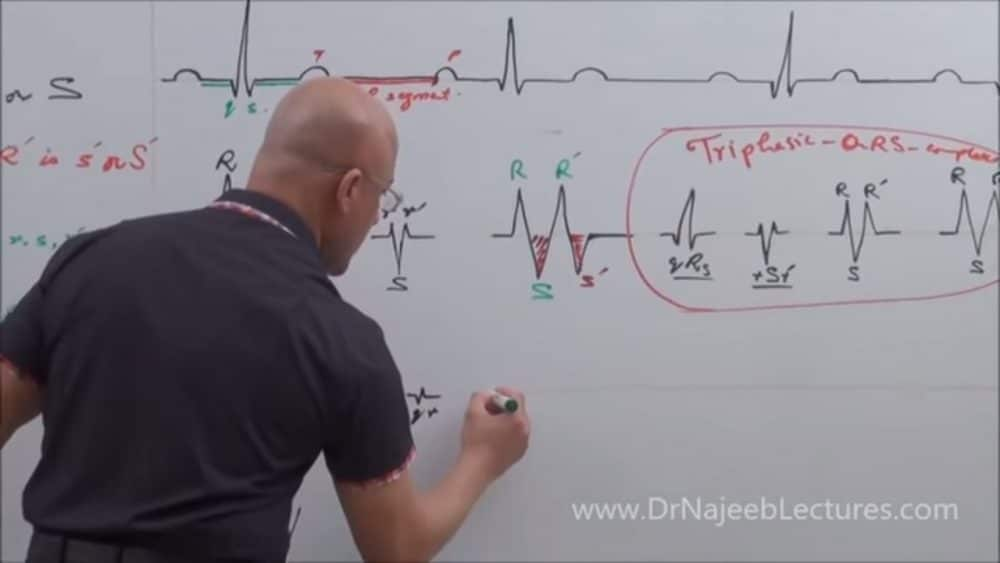 Qrs Complex Dr Najeeb Lectures